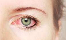 Göz Nezlesine Doğal Çözüm